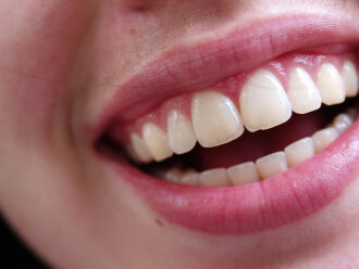É imprescindível manter uma excelente higienização dos dentes com escova adequada após as principais refeições (Foto: Torli Roberts/FreeImages)