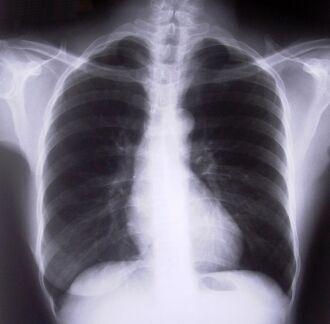 Dados do Instituto Nacional do Câncer revelam aumento de 2% ao ano na incidência mundial de câncer de pulmão