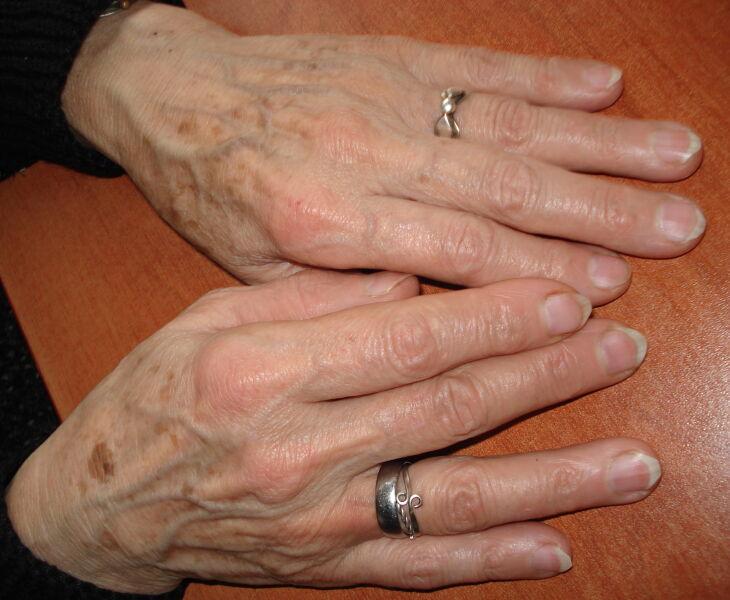 Muitos idosos não denunciam a violência sofrida por medo ou por vergonha (Foto: Divulgação)