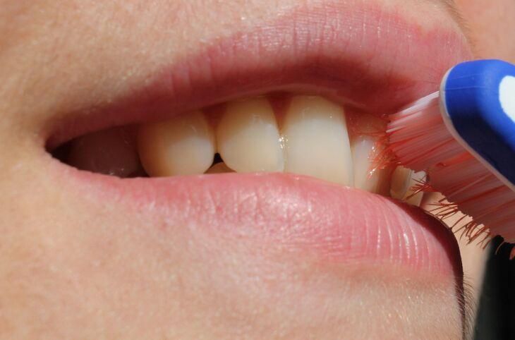 Higiene bucal para um sorriso saudável Crédito: